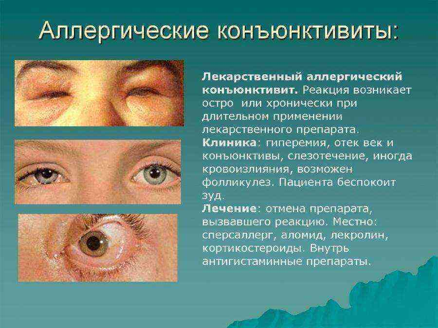 Боязнь света признаки какой болезни. светобоязнь: причины у взрослых и детей
