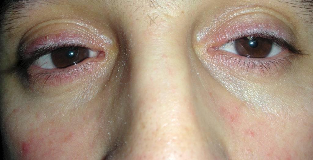 Шелушится нижнее веко глаза у взрослого - врач илизаров