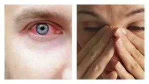 5 советов специалиста: как убрать красноту глаз в домашних условиях