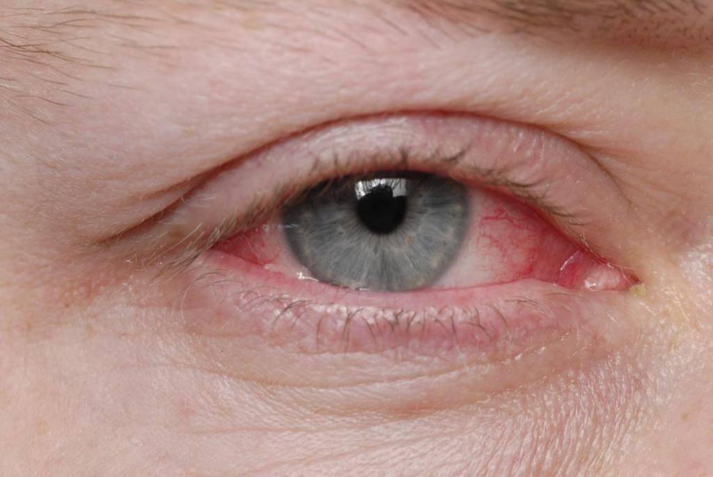 Слезятся глаза от компьютера что делать лечение капли