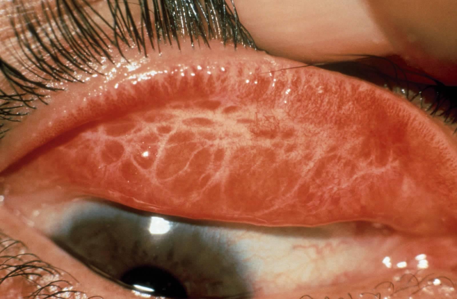 Хламидийный конъюнктивит - симптомы и лечение