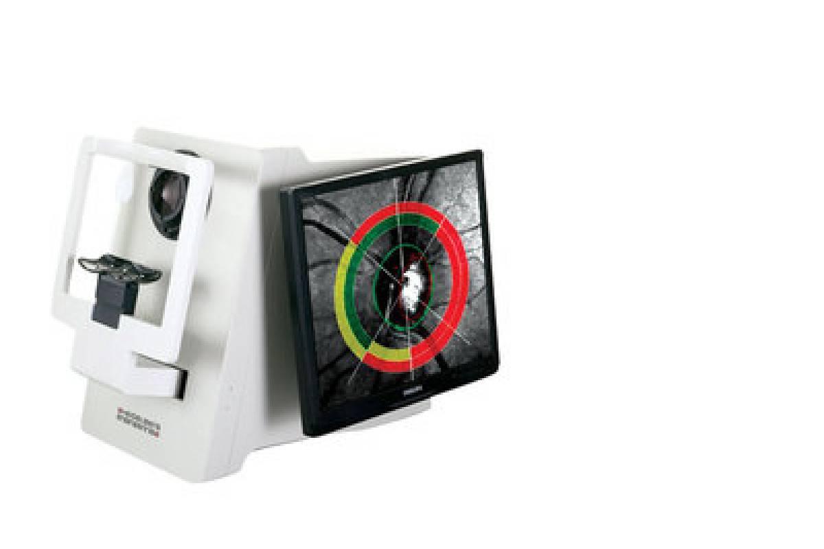 Компьютерная периметрия зрения в диагностике болезней сетчатки глаза