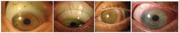 Срок годности линз для глаз в упаковке и после вскрытия (цветных и контактных)