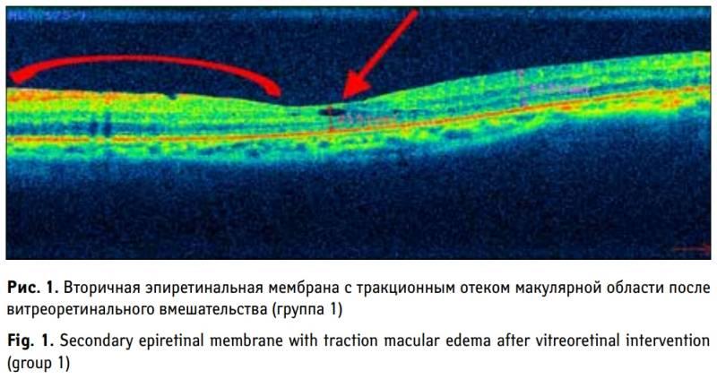 Причины эпиретинальной мембраны глаза — что ведёт к слепоте