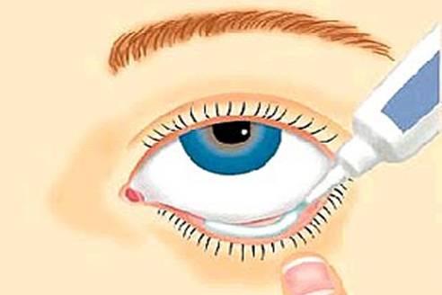 Закладывание мази в глаза, нос, ухо: оснащение, подготовка, алгоритм