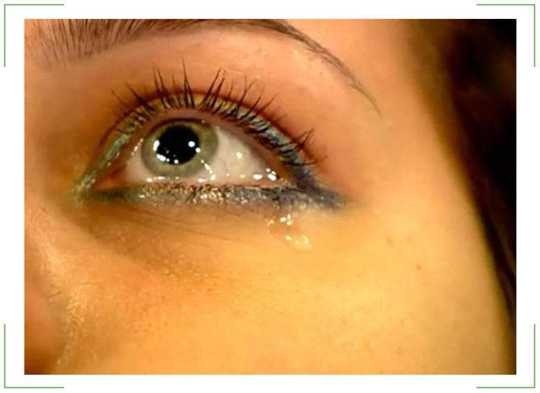 Пелена перед глазами - причины и лечение нарушения