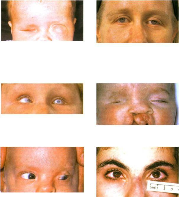 Деструкция стекловидного тела глаза: причины, симптомы и лечение