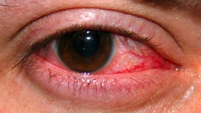 Лечение глаз после химических ожогов – восстановление зрения и эстетики