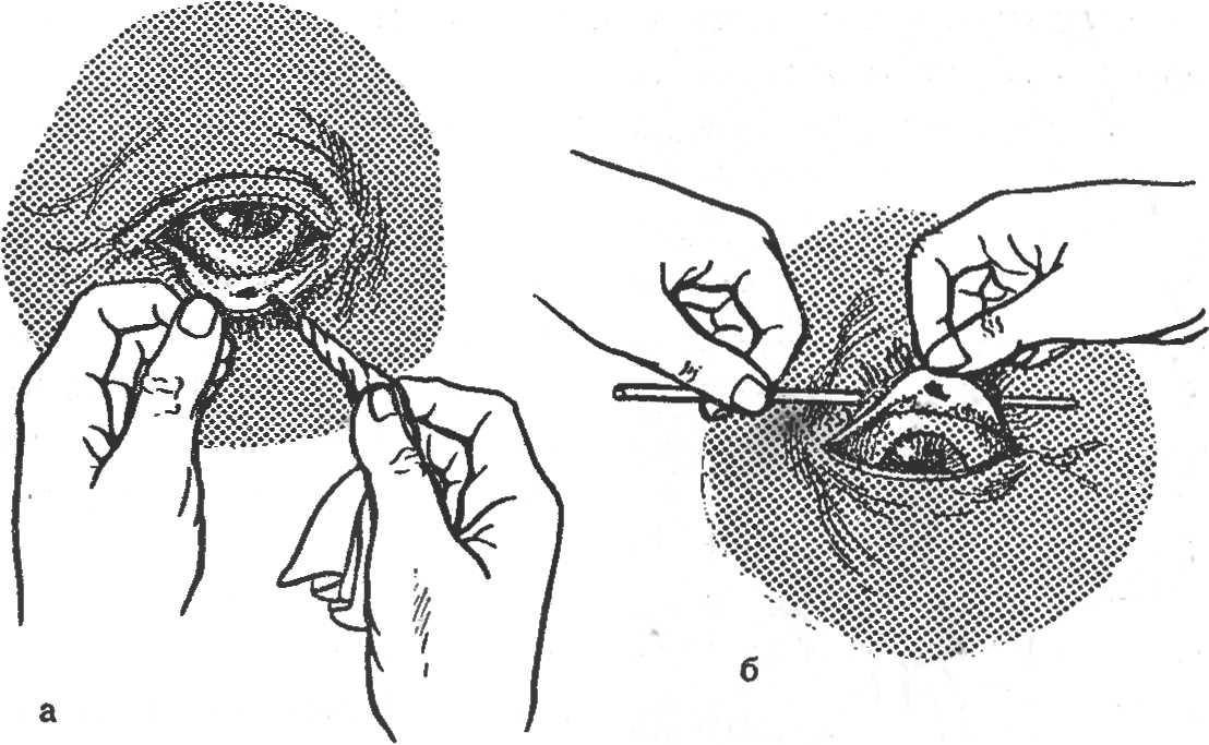 Как убрать соринку из глаза в домашних условиях?