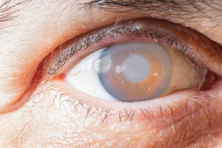 Пелена в глазах - симптомы, причины, лечение. портал vseozrenii.