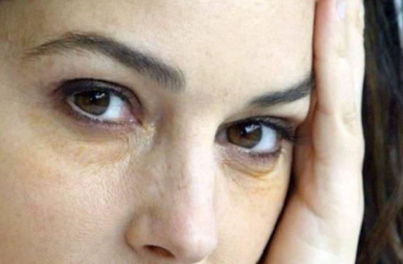 Темные круги под глазами у женщин: топ 7 причин, как избавиться в домашних условиях