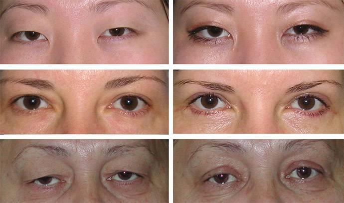 Блефаропластика: восстановление после операции, упражнения, уход за кожей век - мази для швов и от синяков, крем, капли для глаз, микротоки, дарсонваль
