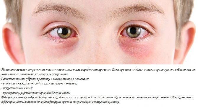 Что делать если глаза красные и болят от линз