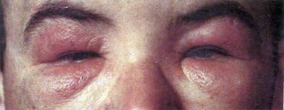 Флегмона глазницы - фото, лечение, причины, симптомы