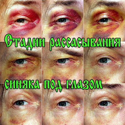 """Сколько проходит синяк под глазом: сроки, лечение, маскировка - """"здоровое око"""""""