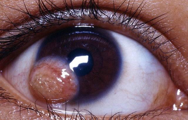 Как избавиться от кисты на глазу с помощью современной медицины
