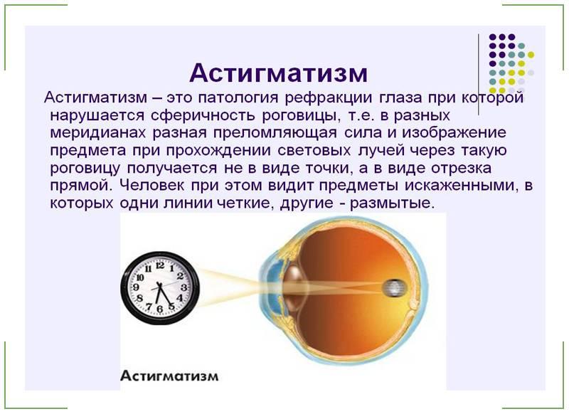 Лечение астигматизма у взрослых - проверенные методы oculistic.ru лечение астигматизма у взрослых - проверенные методы