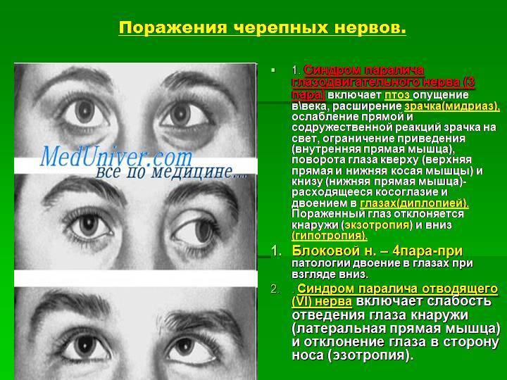 Болезненная офтальмоплегия. офтальмоплегия, диагностика и лечение - о заболеваниях