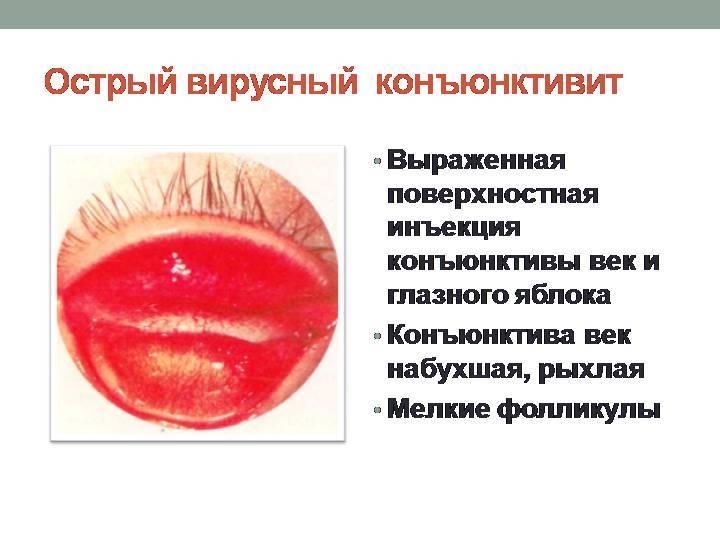 Острый конъюктивит - причины, симптомы и лечение