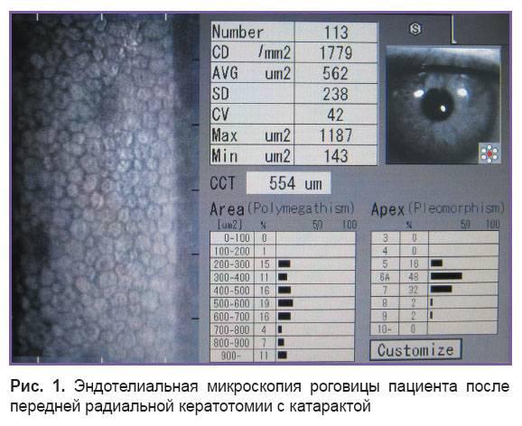 Методы исследования роговицы: микроскопия, кератография и другие