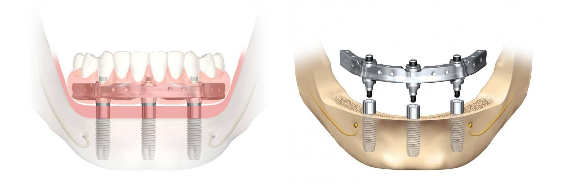 Mis seven - имплантат с шестигранным соединением | mis implants russia