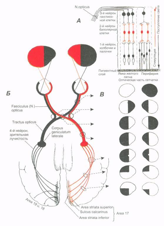 Гемианопсия