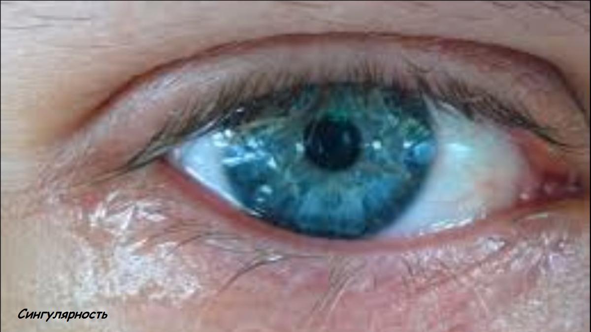 Что делать при зуде и жжении вокруг глаз?