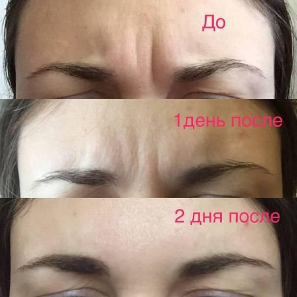«дермахил» (от мешков под глазами): отзывы косметологов, фото, противопоказания. как колоть «дермахил» от мешков под глазами?