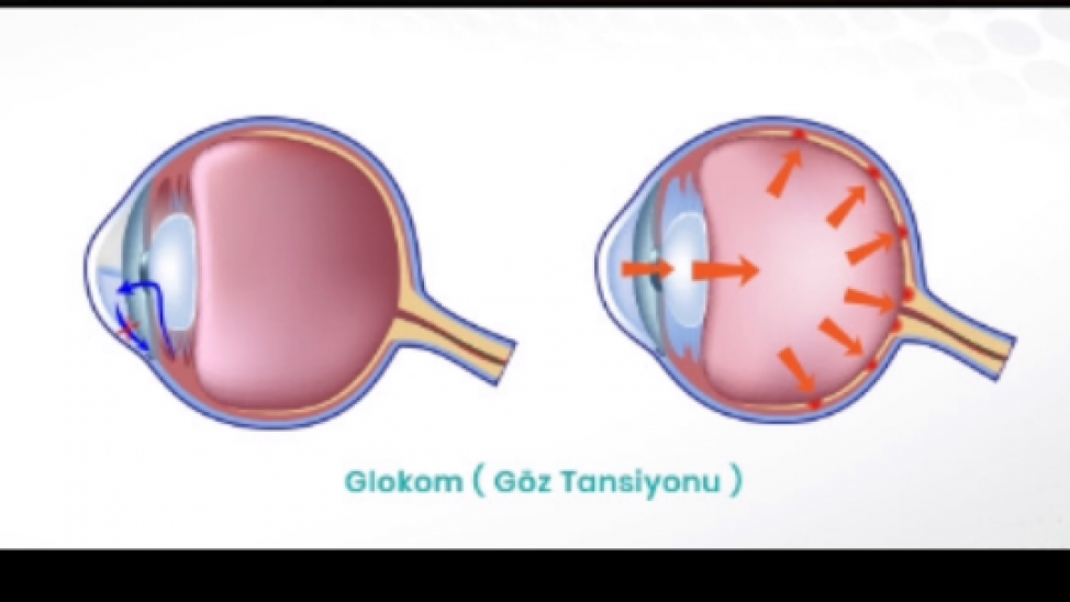 Кто болеет глаукомой? чем опасна? консервативное, оперативное лечение