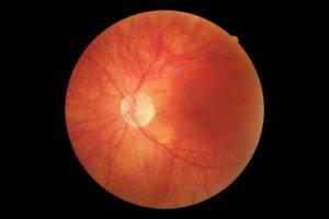 Стафилома диска зрительного нерва. миопический конус и стафилома — причины и лечение. важные клинические признаки