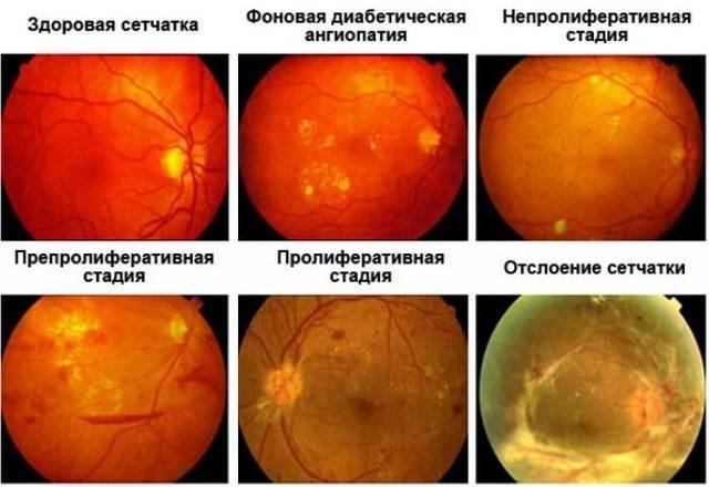 Что такое ретинопатия?