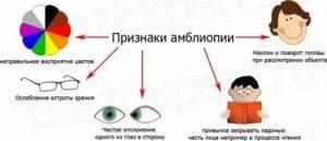 Амблиопия глаза у детей и взрослых. степени, лечение, гимнастика.