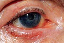 Что такое амавроз глаза: симптомы и лечение