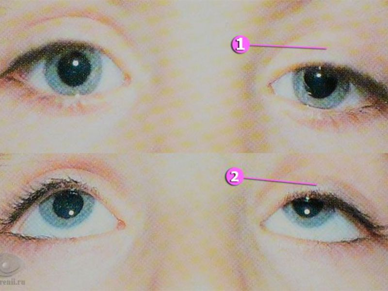 Блефарофимоз глаз