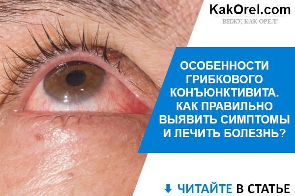 Грибковый конъюнктивит: симптомы и лечение, фото