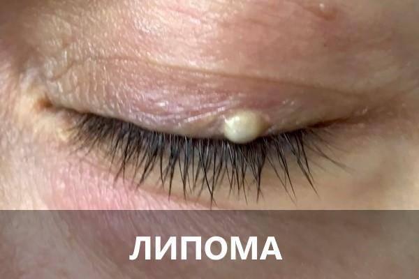 """Жировик на веках глаз (липома): причины, виды, лечение - """"здоровое око"""""""