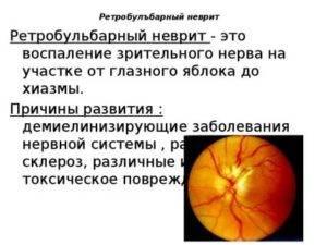 Ретробульбарный неврит зрительного нерва при рассеянном склерозе лечение