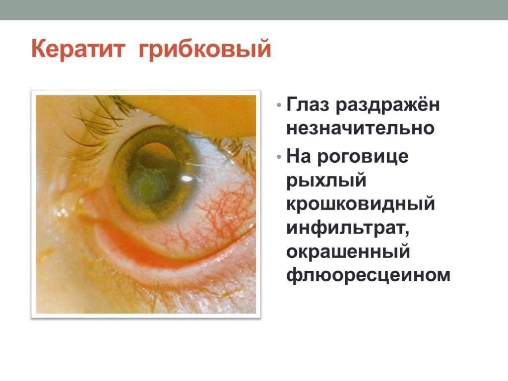 Грибковые поражения глаз: причины, симптомы, диагностика, лечение