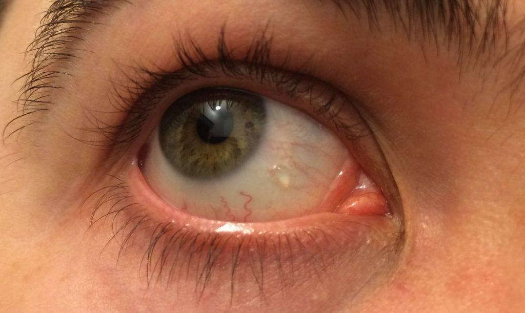 Искорки в глазах причины. причины искр и вспышек перед глазами