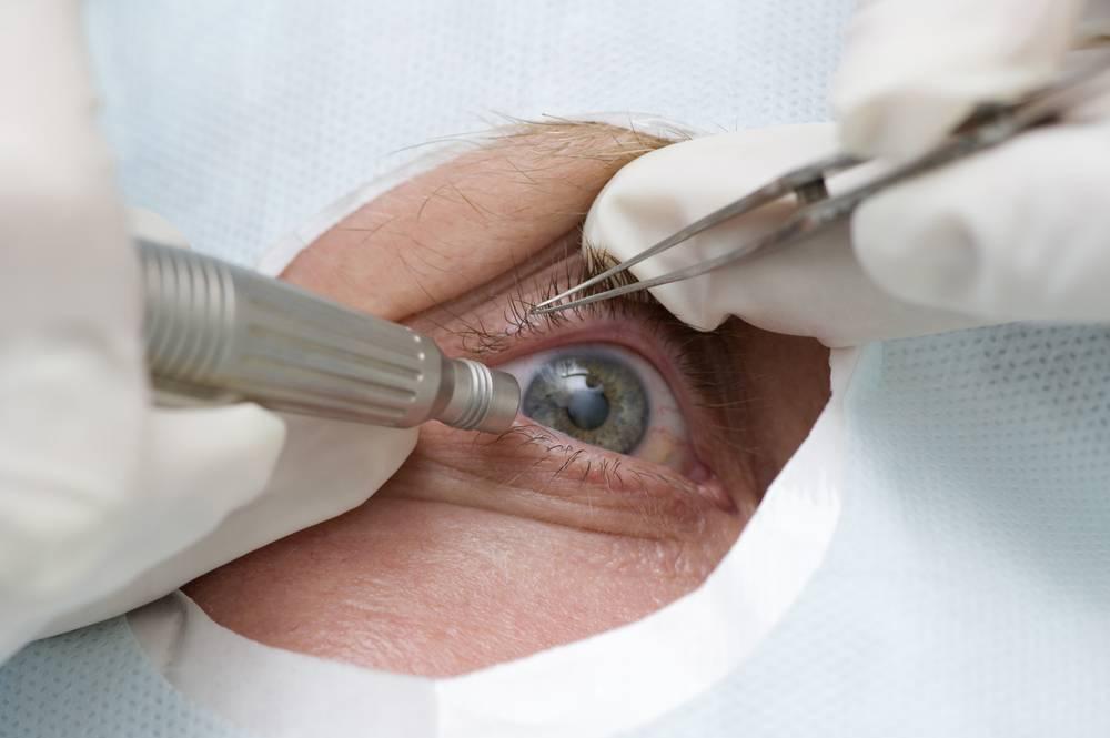 Удаление птеригиума: показания, операция и её виды, реабилитация