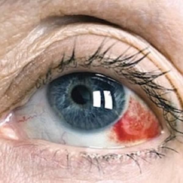 Гемофтальм глаза: лечение, причины, классификация, симптомы