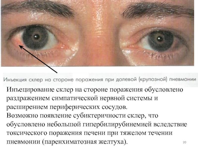Заболевания роговицы.