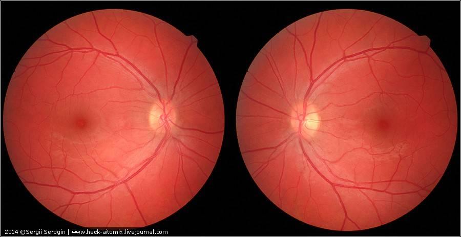 Как определить симптомы отслоения сетчатки глаза и не пропустить первые признаки болезни?