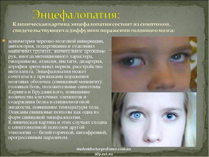 Блефароспазм: что это такое, причины, симптомы и лечение