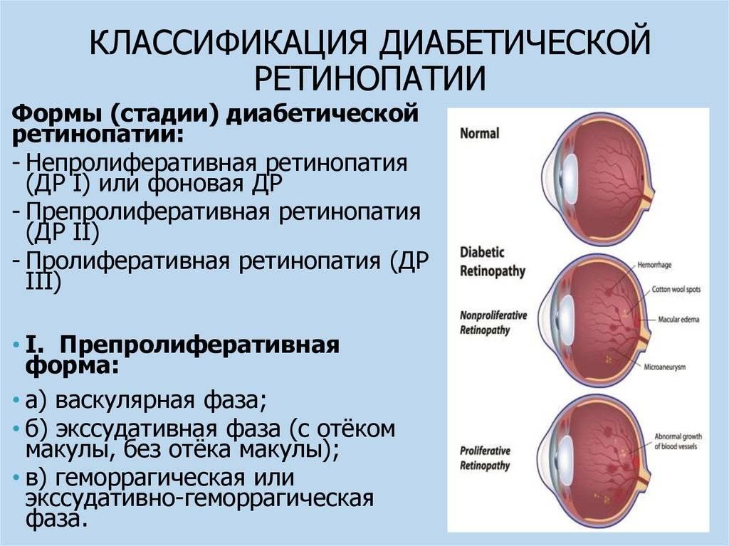 Ретинопатия, что это такое, виды, симптомы и лечение