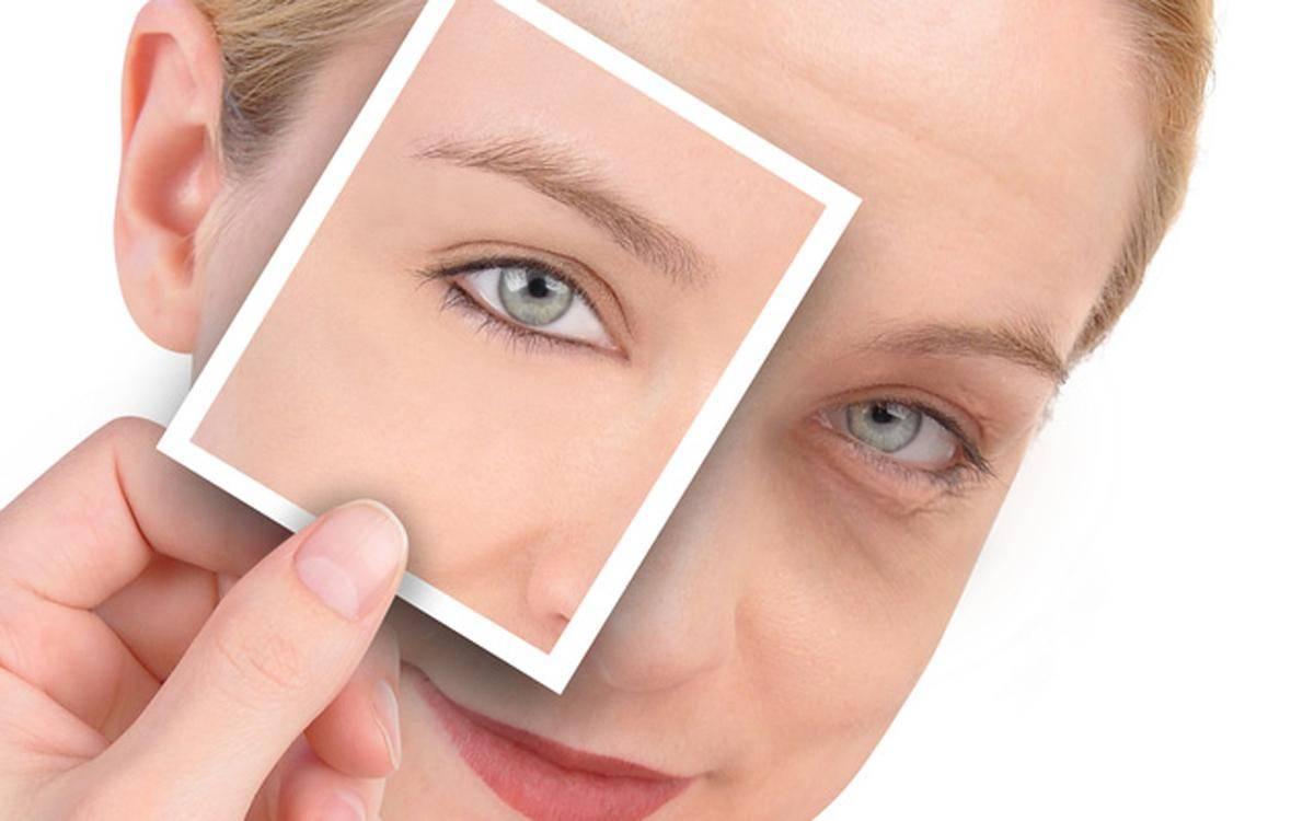 Как убрать мешки под глазами: 10 эффективных способов - лайфхакер