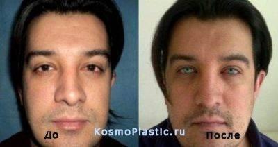 Операции по изменению цвета глаз