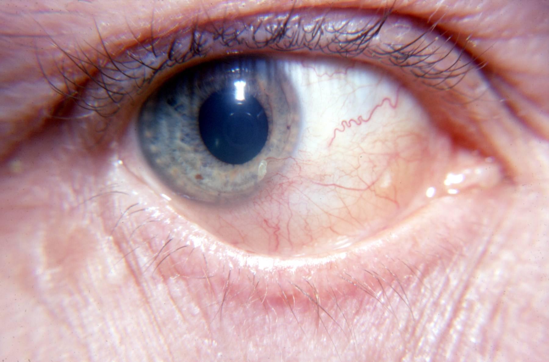 Ирит глаза: симптомы, причины, лечение воспаления радужной оболочки, диагностика, виды, профилактика