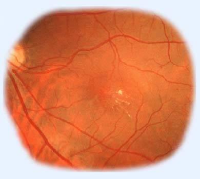 Ангиопатия сетчатки глаза: причины, симптомы и лечение ангиопатии сосудов сетчатки - medside.ru