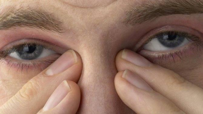 Чешутся глаза в уголках: что делать, причины, лечение - sammedic.ru